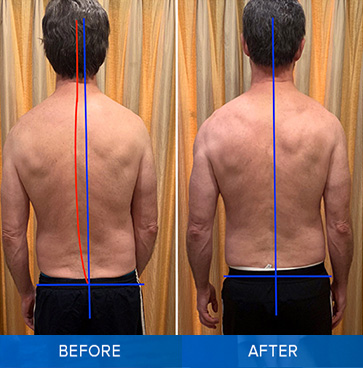 posture-correction-before-after